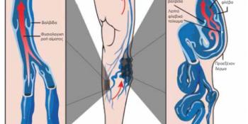 Πρωτοποριακή μέθοδος αντιμετώπισης κιρσών κάτω άκρων